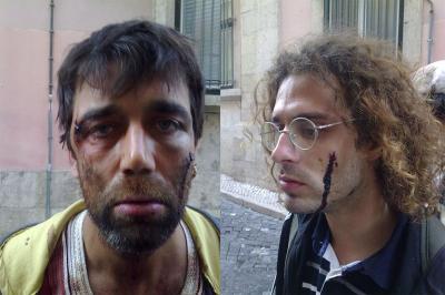 Pedro Pereira e Alexandre Gonçalves, dois dos agredidos pela PSP no Bairro Alto na madrugada de domingo