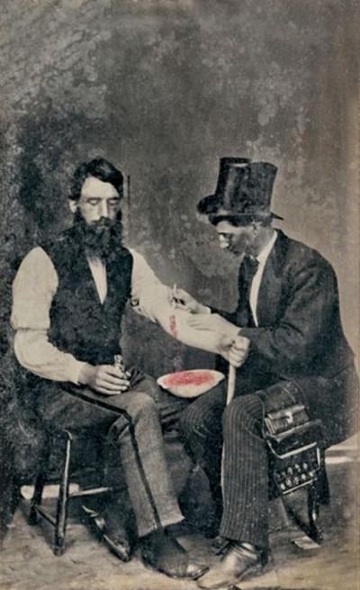 Sangria em 1860, uma das 3 únicas fotografias conhecidas do procedimento – Foto da wikipedia