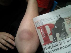 Marcas de agressão no braço de Laura Diogo. Foto de Filipa  Gonçalves.