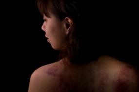 Mulher de costas com hematomas nos ombros.