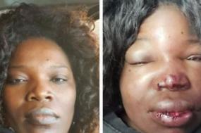 Fotografias de Cláudia Simões antes e depois das agressões da Polícia de Segurança Pública.