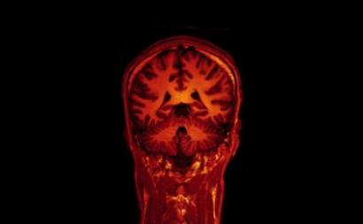 Imagem do cérebro por ressonância magnética funcional. Imagem de Jon Olav Eikenes/Flickr.