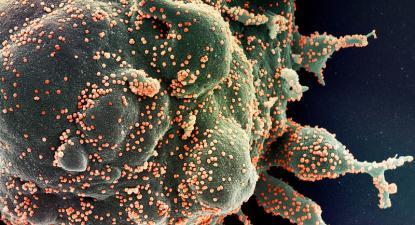 Célula infetada por SARS-CoV-2. Foto de NIAID/Flickr.